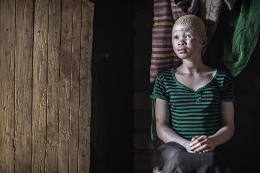 A young girl with albinism in Malawi